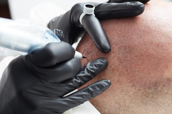 Maquillage Permanent - Tricopigmentation, Micropigmentation cuir chevelu - Institut Pyrène